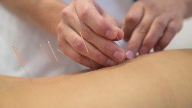 Photo of Akupunktur